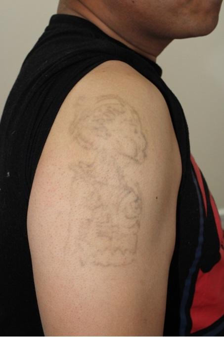 タトゥー除去(5回治療後)